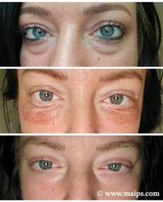 Plasma Facial, Laser Skin Tightening, Non Surgical Facelift, Skin Resurfacing, Wrinkled Skin, Dermal Fillers, Medical Aesthetics, Skin Treatments, Plastic Surgery