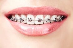 Our dentists in Romania offer complete orthodontics treatments and use modern orthodontic appliances, suited for both young and adult patients. Contact us now for a personalized offer. http://www.romaniandentaltourism.com/orthodontics-in-romania