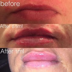Had to post this 😍.. Client wanted a fuller upper lip. 3rd picture we just used 0.5 in the upper lip only 👄💉 #lips #manchester #juvederm #juvederm3 #pout #dermalfiller #lipaugmentation #skincare #bestaesthetics