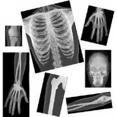 human x-rays for doctor and science play
