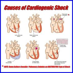 Cardiogenic shock is no bueno! But once you see it you will never forget that patient!