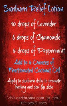 Sunburn Relief Lotion Essential Oil Recipe