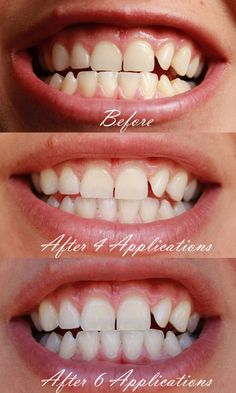 how to whiten your teeth at home. custom made whitening trays from Smile Brilliant! Teeth Surgery, Dental Surgery, Dental Implants, Dental Hygienist, Home Teeth Whitening Kit, Teeth Whitening Remedies, After Wisdom Teeth Removal, Wisdom Teeth Pulled, Tooth Pulled