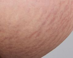 You'll get the best results if you start treatment right after the stretch marks have appeared, while they're still red.