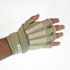 Hand based splint provides digit and thumb MP extension associated with digit and hand weakness/paralysis secondary to radial nerve palsy.  W-701 Dorsal View