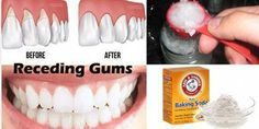 Here is how to cure periodontal disease naturally and painlessly. Periodontal disease (Periodontitis) is a chronic infection that affects the gums and . Gum Health, Teeth Health, Healthy Teeth, Oral Health, Dental Health, Healthy Tips, Health And Wellness, Dental Care, Healthy Food