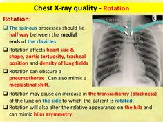 Chest x ray fundamentals Medical Radiography, Np School, Radiology Imaging, Silhouette Sign, Cranial Nerves, Lungs, Nursing, Medicine, Lunges