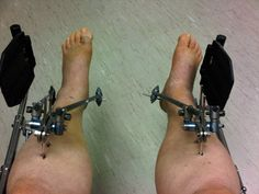 barbell rehab