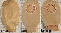 Discretion is just one reason to make an ostomy pouch cover. The cover also prevents skin irritation. You'll find step by step instructions with photos for each step so even a novice can sew an ostomy pouch cover.