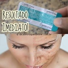 If you suffer with blemishes on the face I bring you the solution to your problem of how to lighten stains on the face with aspirin as it contains acid in your formula. You will need: 03 to 04 aspi… Se necesita for blemishes on the face – United Healt Beauty Care, Diy Beauty, Beauty Hacks, Hip Problems, Beauty Recipe, Tips Belleza, Belleza Natural, Weight Loss Tips, Losing Weight