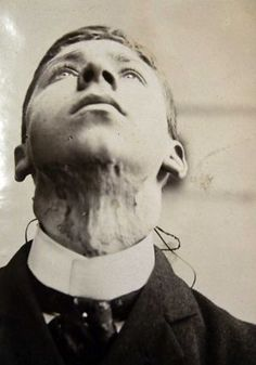 Mr Mcinnis before treatment. (Victorian skin ailment at Wakefield Asylum)