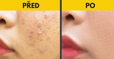 Beauty Makeup, Hair Beauty, Best Acne Treatment, Health Fitness, Make Up, Skin Care, Motivation, Pavlova, Life Hacks