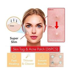 Combat Skin Tags, Acnes and Blemishes with the Skin Tag and Acne Master Patch! Our Skin Tag and Acne Master Patch is a pack of innovative stickers that . Beauty Skin, Health And Beauty, Diy Beauty, Beauty Care, Maquillage Goth, Tag Remover, Beauty Hacks For Teens, Skin Tag Removal, Hair Removal