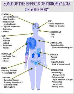 Pain. Huh. I wonder if I have some version of Fibro. Maybe I'm Fibro + severe Hemiplegic migraines + Neuropathy
