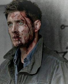"Dean. ""I Think I'm Gonna Like It Here"" This image is beautiful to me, because even though he is bloody and beat up, those eyes show through gloriously."