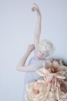 Albino - Анна Данилова