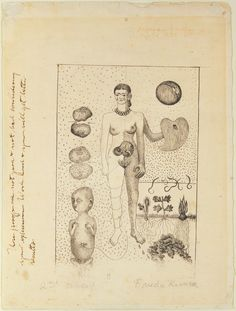 "Frida Kahlo, ""Frida and the Miscarriage"" (""El Aborto"") (1932), lithograph (© ARS, NY; Museo Dolores Olmedo Patiño; photo by Schalkwijk/Art Resource, NY)"