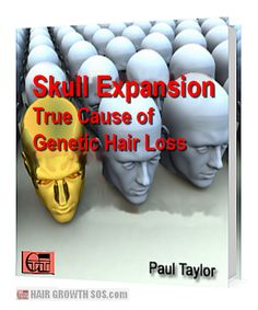 Hair loss (androgenetic alopecia) in men and women is caused by skull expansion. Sounds bonkers but it's true! Read this free ebook to learn more. Losing Hair Women, Hair Loss Women, Hair Loss Causes, Prevent Hair Loss, Hc Hair, Androgenetic Alopecia, Luscious Hair, Hair Starting