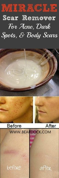 Miracle Homemade Scar Remover For Acne and Dark Spots – BearDock