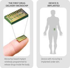 First Wirelessly Controlled Drug-Delivery Chip Successful in Human Trials