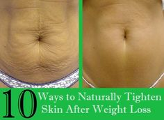 10 Ways to Naturally Tighten Skin After Weight Loss | Nutriclue
