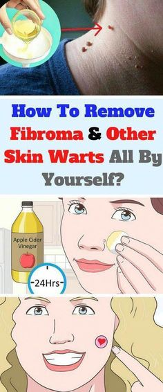 The Key to Successful Get Rid of Warts Whenever you have warts you're probably desperate to remove them. Warts can happen to anybody, but some individuals are more inclined to it than others. Foot Warts, Warts On Hands, Warts On Face, Get Rid Of Warts, Remove Warts, What Causes Warts, Natural Asthma Remedies, Herbal Remedies, Sleep Remedies