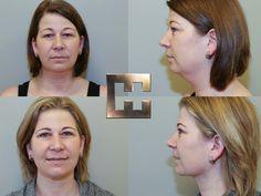 Vor und nach einer Fettabsaugung eines Doppelkinns Liposuction, Beauty, Double Chin, Amazing, Photo Illustration, Beleza