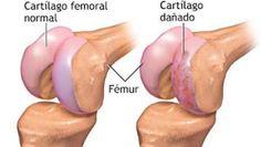 Esta es la forma imparable de regenerar el carilargo de la rodilla y la cadera con hierbabuena