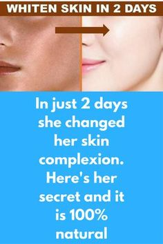 In just 2 days she changed her skin complexion. Her's her secret and it is 100% natural This is a very special remedy. This is a step process and in each one of them we are going to use ingredient that can make your skin complexion fair. You can see visible change in your skin in just 2 days Step 1 – Fairness scrub 4 tbsp salt 2 tbsp lemon juice Mix …