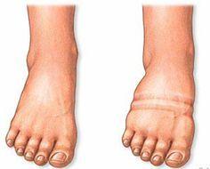 Wassereinlagerungen in Händen und besonders an den Füßen sind unangenehm. Du solltest in erster Linie abklären, ob nicht ein Herzproblem hinter den Beschwerden liegt. Kann dein Arzt nichts feststellen, so probiere doch unseren Ein-Wochen-Plan aus, um das Wasser aus deinem Körper zu treiben!