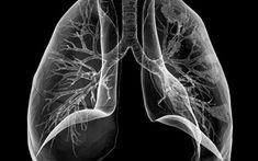 Reteta cu hrean este un adevarat medicament pentru toate bolile de plamani. Acesta este un remediu folosit in special impotriva pneumoniilor recidivante, a bronsitelor cronice si a tuberculozei pulmonare. Pe langa efectele puternic antibiotice ale hreanului, acest preparat este si un puternic vitaminizant si remineralizant, precum si un imbatabil stimulent imunitar. Hreanul curata ficatul si este indicat in dieta celor care sufera de hepatita sau ficat gras. In plus, este un bun tratament… Good To Know, Health Fitness, Orice, Foods, Thermomix, Food Food, Food Items, Fitness, Health And Fitness