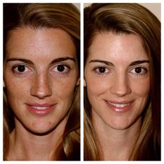 Before & After of a happy Rodan and Fields Reverse customer. Reverse treats brown spots, hyperpigmentation, freckles, and dullness.