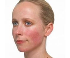 8 Remarkable Natural Treatments For Rosacea | Find Home Remedy