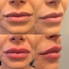 Sehr natürliche Lippenvergrößerung mit 1ml Hyaluronsäure (Teoxane Kiss) Lip Fillers, Lips