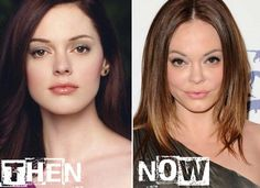 See Rose McGowan Plastic Surgery Before & After here surgerybeforeafter.com