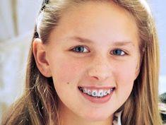 Răng đẹp khi các răng trên khung hàm đều đặn