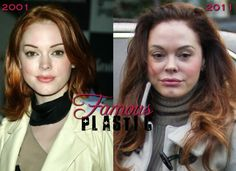 Rose McGowan Had Very Bad Plastic Surgery / Botox / Injectable Fillers