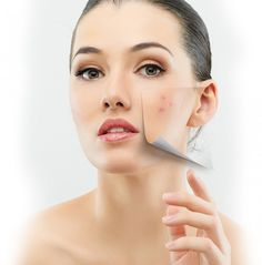 Acne And Oily Skin Get Rid Of Your Acne For Good! Acne is a nightmare cosmetic problem for sure. Many acne patients somet. Acne Treatment, Skin Treatments, Acne Blemishes, Acne Scars, Acne Out, Skin And Hair Clinic, Facial Scars, Pimples Overnight, Beauty