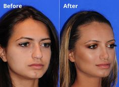 Combining Your #Rhinoplasty (Nose Job) With a #ChinImplant Surgery? What To Consider. -Via @ZimmFPlastics #NoseJob