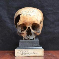 The Edinburgh skull                                                                                                                                                                                 More