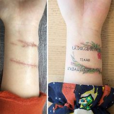 10+ Amazing Tattoos That Turn Scars Into Works Of Art
