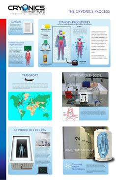 Illustration of the cryonics process. Human cryogenic suspension for life extension