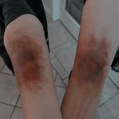 Gore Aesthetic, Bruises Aesthetic, Gorillaz, It Hurts, The Originals, Blood, Aesthetics, Ulzzang, Pictures