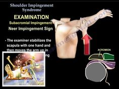 Shoulder Examination / Subacromial, Cuff - Everything You Need To Know - Dr. Nabil Ebraheim - YouTube