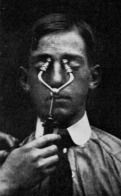 sutured-infection:  Frontal sinus transilluminator, from Joseph D. Bryant and Albert H. Buck's American practice of surgery, 1906.