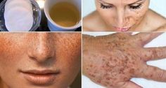 Let Your Wrinkles, Freckles And Dark Spots Disappear with This Amazing Homemade Lotion! Argile Bentonite, Freckle Remover, Clean Your Liver, Toenail Fungus Treatment, Acne Blemishes, Dark Spots, Dark Circles, Freckles, Flat Belly Diet