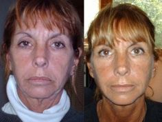 French Women Don't Get Wrinkles -   Facial Magic exercises workout the face to make you look younger #facialexercise #naturalbeauty
