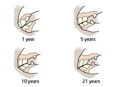 Determining a horse's age by their teeth.