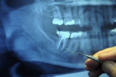 Shocking Connection: of all Terminal Cancer Patients Previously Had This Dental Procedure. What is this dental procedure? The root canal. More than 25 million root canals are performed every year in this country…cont. Oral Health, Dental Health, Health And Nutrition, Health And Wellness, Dental Care, Gum Health, Healthy Holistic Living, Degenerative Disease, Dental Procedures