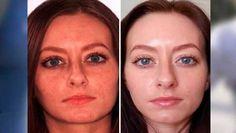 Ella lavó su cara con esto durante 3 días y público en la prensa para todas las mujeres cual fue el secreto para borrar para borrar las arrugas, manchas y pecas.